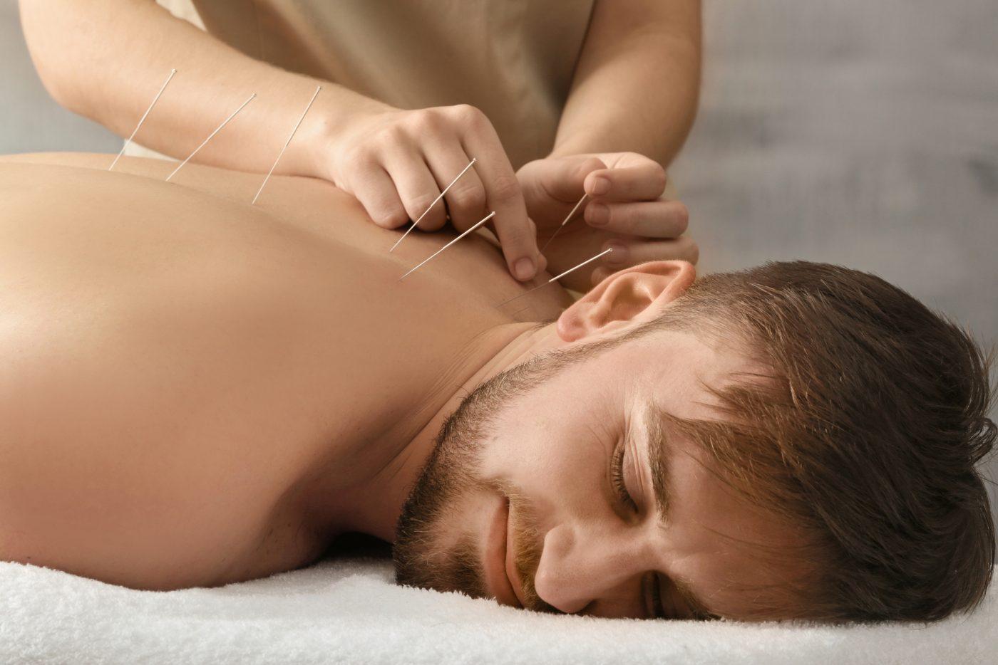 akupunktur behandling i københavn